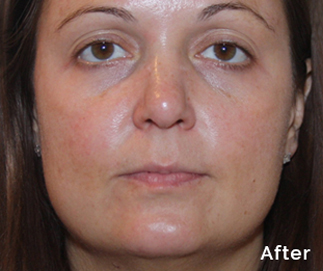 peel to reveal after treatment