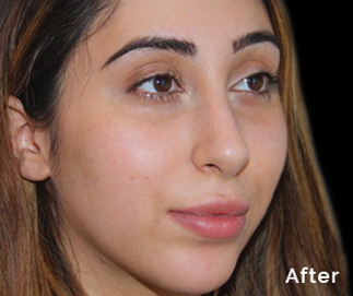 peel to reveal facial training - After treatment picture