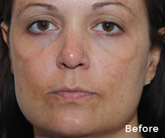 peel to reveal before treatment