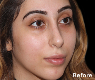 peel to reveal facial training - before treatment Picture