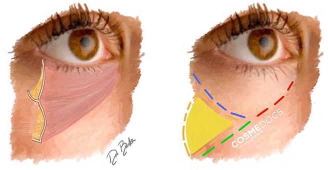 tear trough anatomy