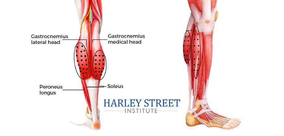 anatomy of leg