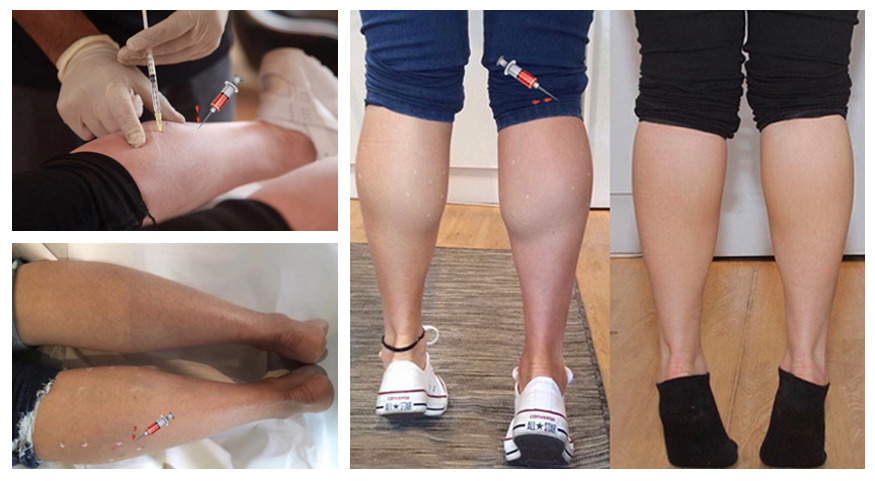 calf-Reduction-Treatment