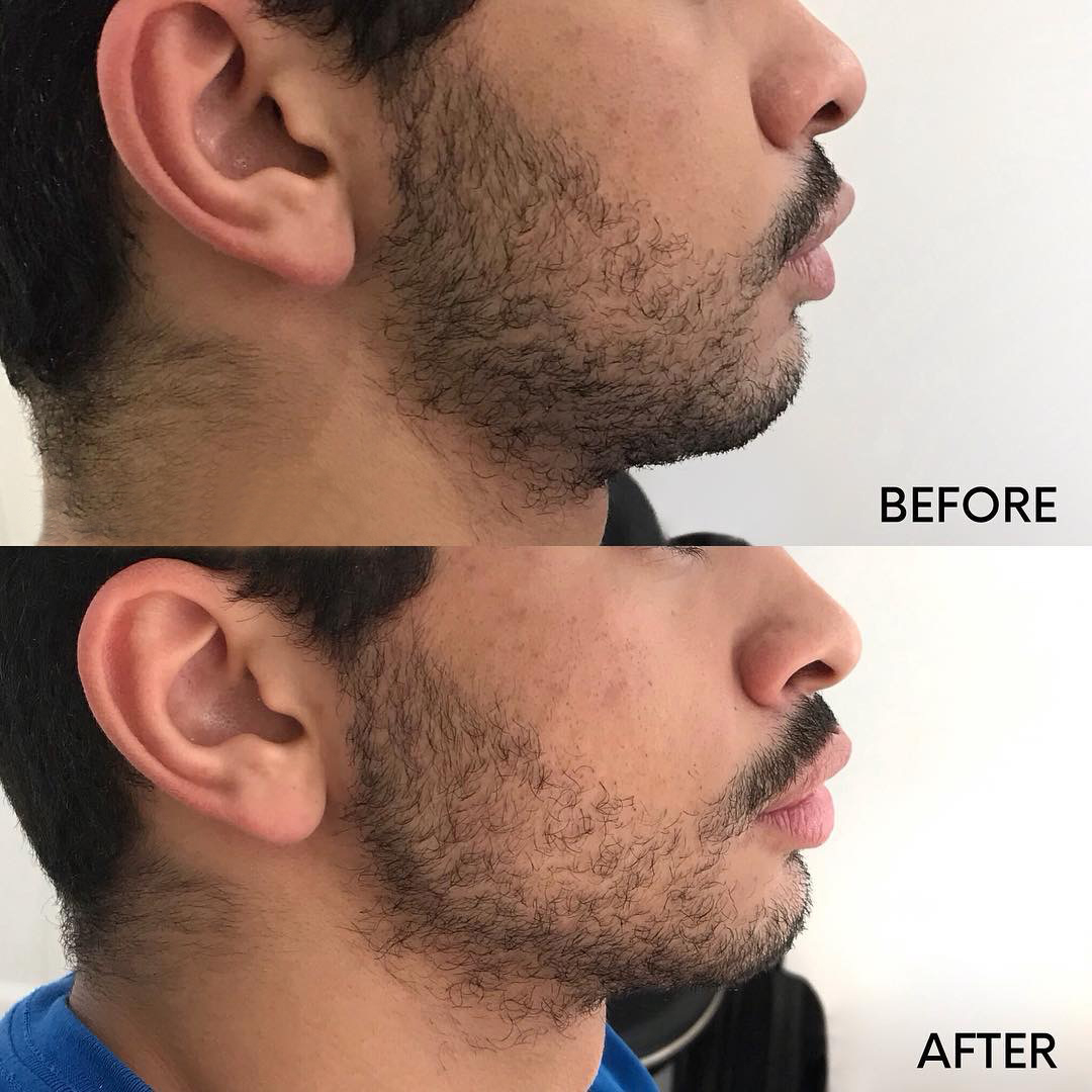 chin and jawline treatment before and after