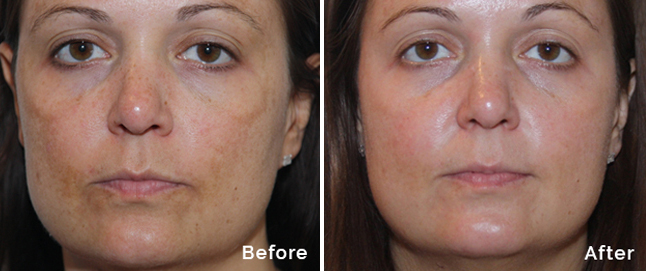 Pigmented skin treatment with peel to reveal befor and after