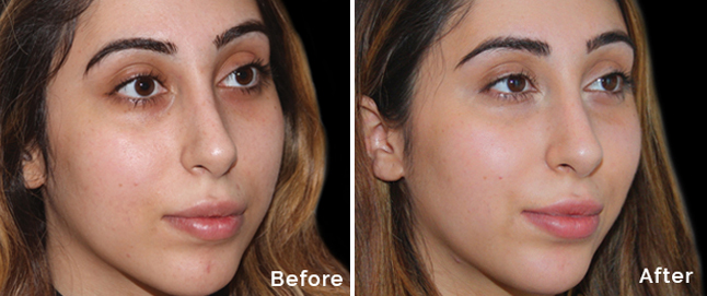 Peel to Reveal treatment before and after picture